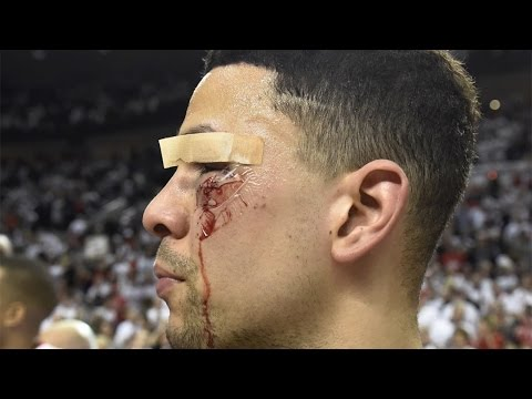 Top 5 Worst Sports Injuries of 2016