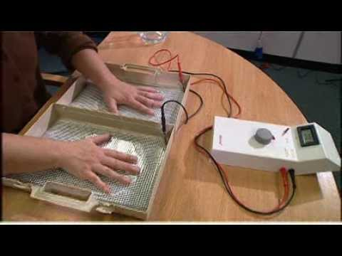 Treating hyperhidrosis of the hands and feet with an Idrostar iontophoresis  machine