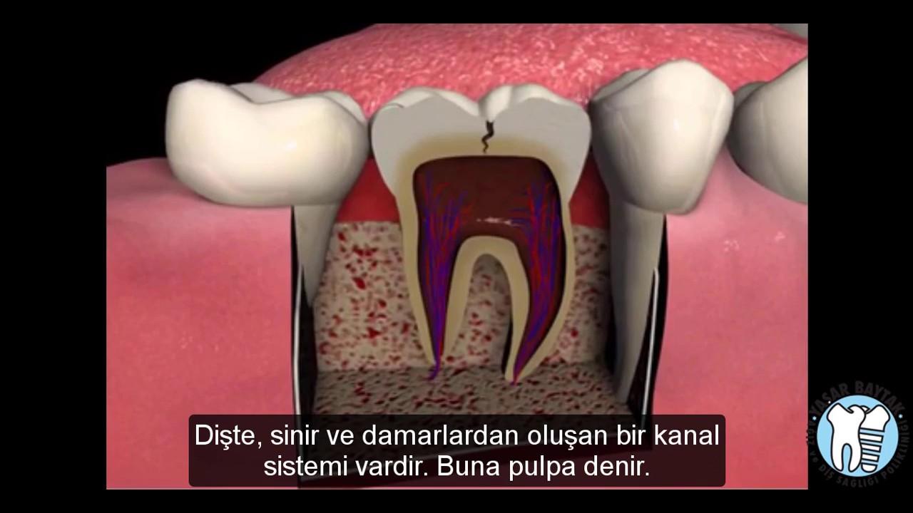 Diş Çürüğü ve Genel Diş Sağlığı