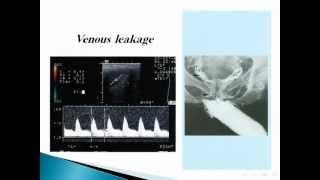 Imaging of penile lesions Dr Tarek El-Diasty