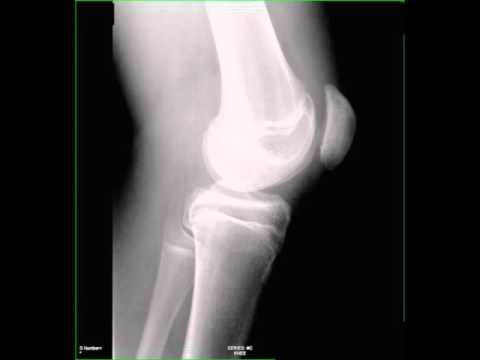 Fracture of Patella on X ray - YouTube X Rays Of Broken Knees