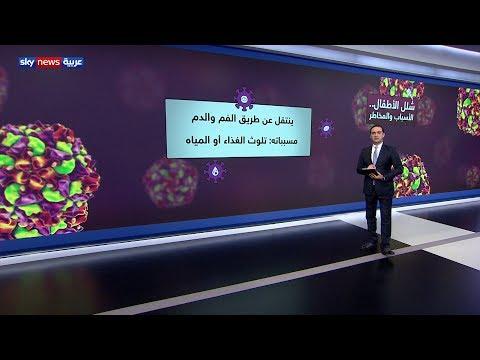 شلل الأطفال.. الأسباب والمخاطر  - نشر قبل 12 ساعة