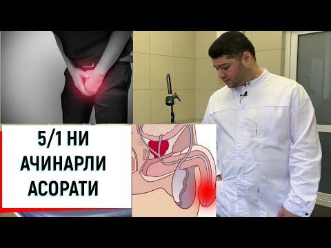 БЕШГА БИР ЗАРАРИ АЕЛЛАР КУРМАСИН