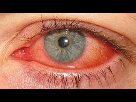 how to get rid of adenovirus 36