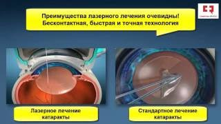 катаракта операция видео