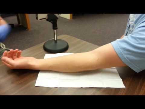 How to start an IV : Antecubital Fossa