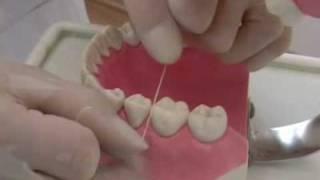 Як користуватися зубною ниткою
