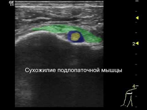 Что такое теносиновит сухожилий и как его лечить. Что такое теносиновит и как его лечить