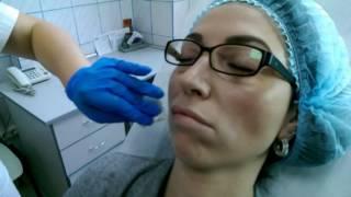 Филлеры для губ – коррекция объема и контурная пластика