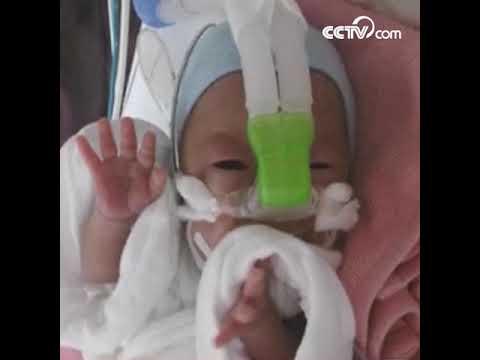 Самый экстремально-новорожденный в истории акушерства|CCTV Русский