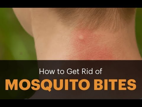 Home remedies for mosquito bites that are natural and safe