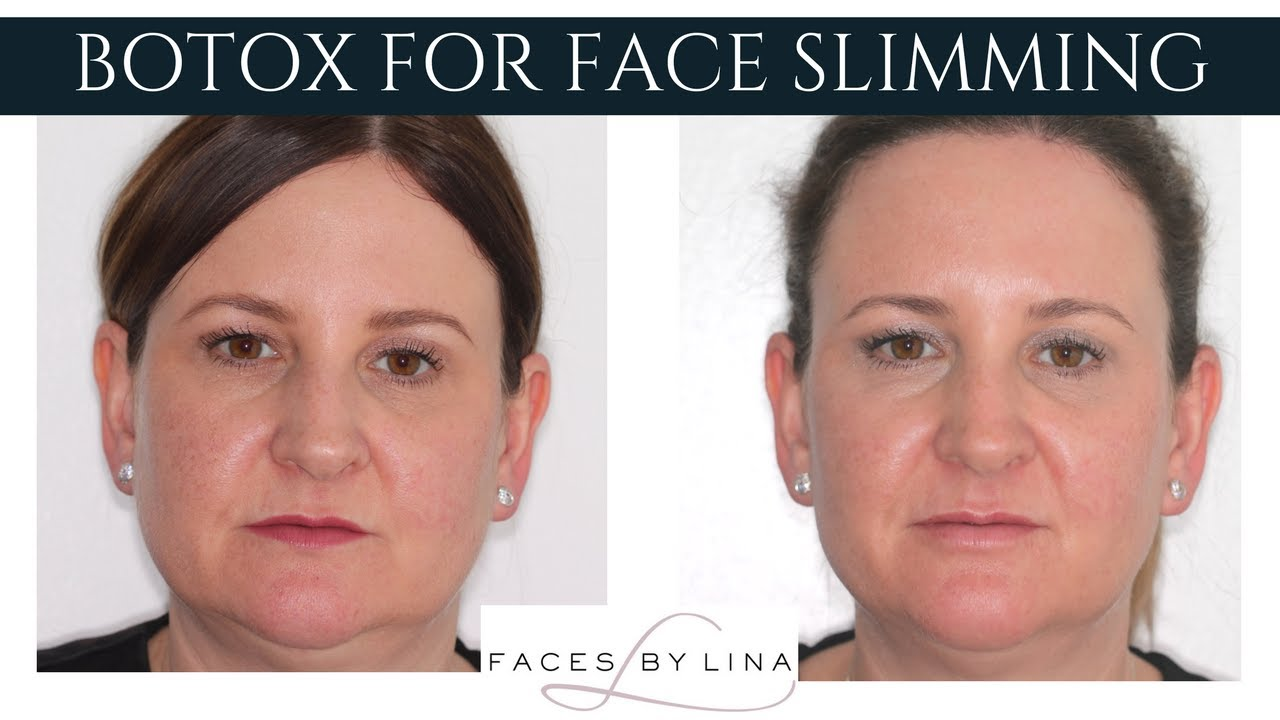 face slimming with botox wow before and after pictures