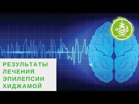 Неврология. Глава 6. Эпилепсия