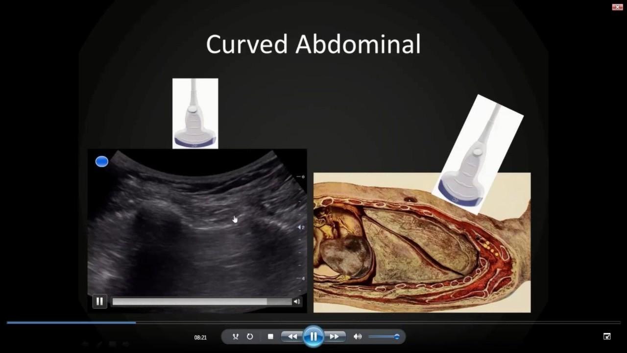 Aium dating ultrasound