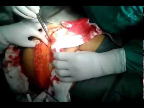 Incision - Anterior Abdominal Wall