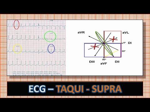 Ecg Eletrocardiograma Com Taquicardia Supra Ventricular Por Reentrada Nodal