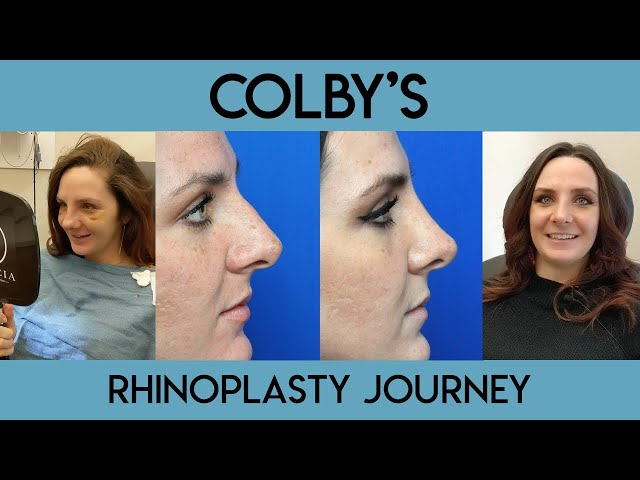 Colby's Rhinoplasty Journey