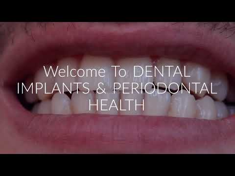 Dental Surgeon Rochester NY - DENTAL IMPLANTS & PERIODONTAL HEALTH