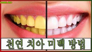 천연 치아 미백 방법