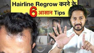 Hairline कैसे Regrow करें? 6 Reason जिस वजह से Hairline Recede होने लगती है। Genuine Tips