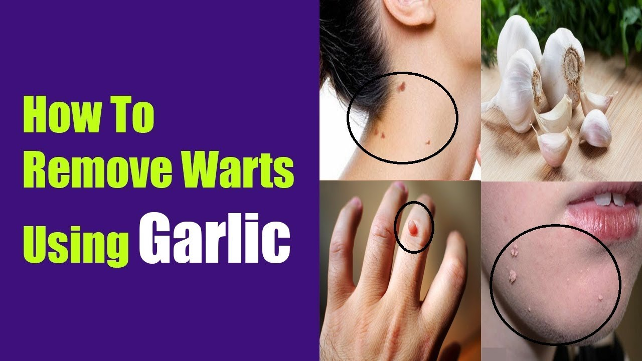 How to Remove Warts Naturally Using Garlic pictures