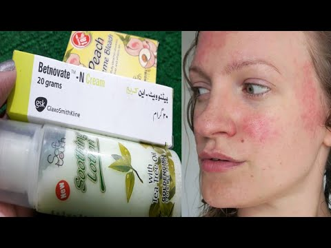 After Bleach Skin Redness    How To Remove Skin Redness After Bleach By  Sanam Ansari   