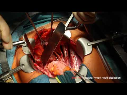 Total mesometrial resection and therapeutic pelvic lymph node dissection: step-by-step: 5