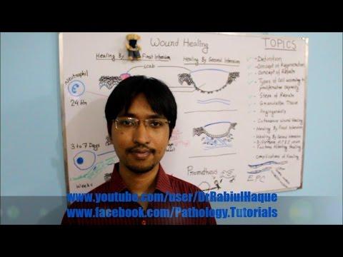 Wound Healing Part 2 (HD): Cutaneous Wound Healing, Factors & Complications Of Healing