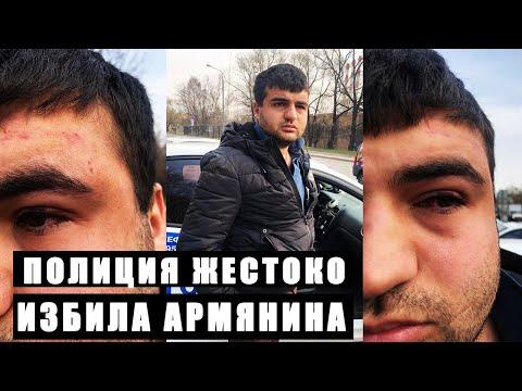 Полиция жестоко избила армянина ни за что (+18)