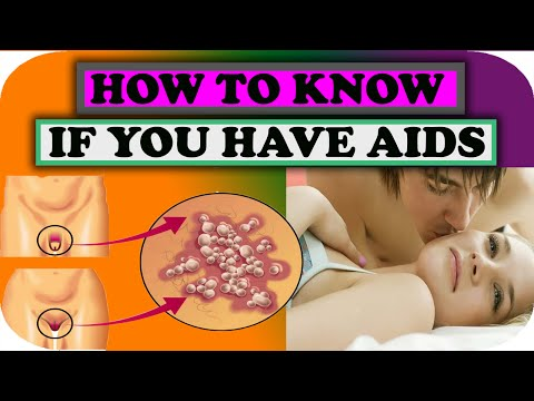 What is Aids | symptoms of aids