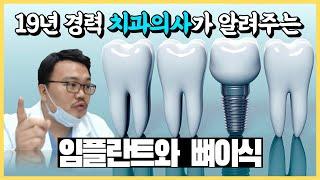 치과의사가 알려주는 임플란트와 뼈이식에 관한 모든것!
