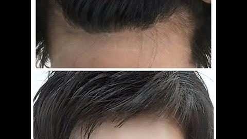 탈모 머리카락 나는 비법을 무료로 공개합니다 머리카락 나고 있는 전후 비교 사진