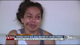 woman beaten badly by her ex boyfriend
