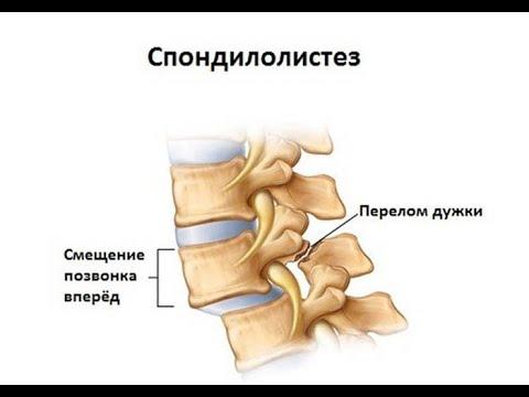 Болезнь сидячих профессий. Диагностика боли в спине.  Почему болит спина у IT специалистов. Осанка