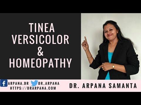 टिनिआ वर्सिकलर या सेहुँआ के कारन और होम्योपैथिक दवाई || TINEA VERSICOLOR And Homeopathy