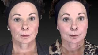 Facial Rejuvenation 3D Before and After-05