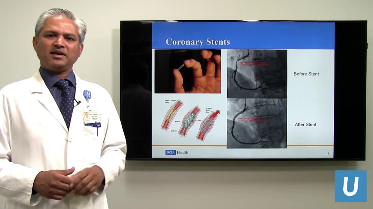 Coronary Angiography and Stent Interventions - Ravi Dave, MD | UCLAMDChat