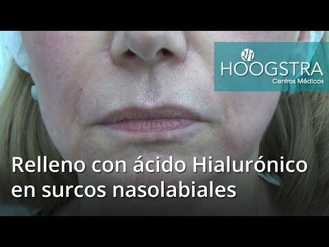 Relleno con ácido Hialurónico en surcos nasolabiales (16149)