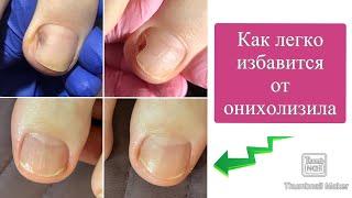 Причины онихолизиса Как от него избавиться Почему отслаиваются ногти Онихолизис на ногах