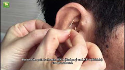 Ear Acupuncture for Lumbar Disc Herniation, Low Back Pain and Shoulder Joint Pain