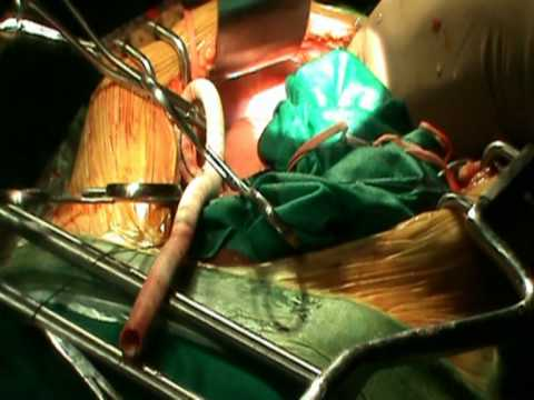 Vascular Surgery: Aorto Bifemoral Grafting for Complete Aorto-Iliac Block