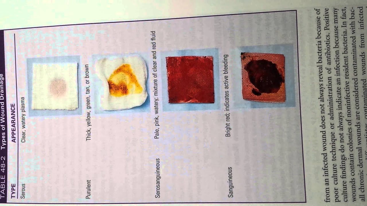 Fundamentals types of wound drainage youtube for Types of drainage