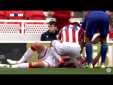 Ryan Shawcross Leg Break Stoke City Vs Leicester 2019