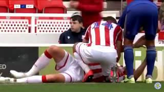 Ryan Shawcross Leg Break Stoke City vs Leicester 2019
