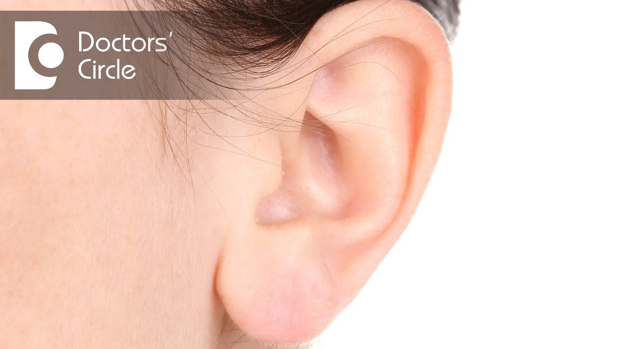 What Causes Benign Ear Lobe Cyst Dr Harihara Murthy Youtube