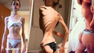 El peor caso de anorexia de la historia. No creerás cómo luce 7 años después…