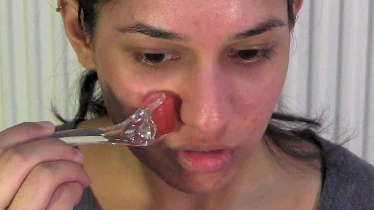 how to use a derma roller for acne scars micro needling