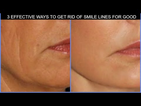 just-5-minutes-per-day,-lift-laugh-lines-with-face-massage-get-rid-of-nasolabial-folds-100%-working