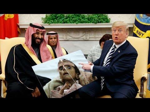 US-UK-Saudi War Crimes: 5,000 children dead or hurt and 400,000 malnourished in Yemen war