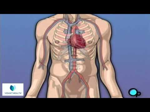 Coronary Artery Bypass Graft (CABG) Surgery Vidant PreOp® Patient Education